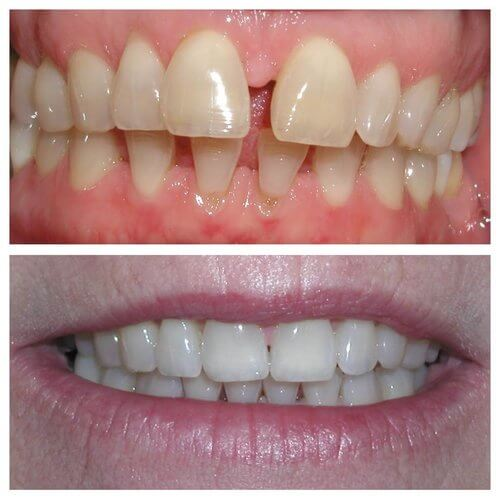 Before and after Invisalign®