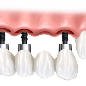 Implant-Supported Dental Bridge